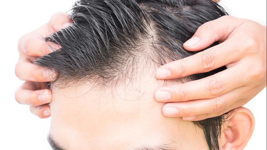 bệnh hói đầu là gì